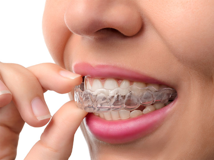 Invisalign-treatments