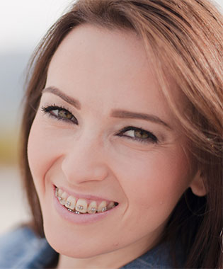 orthodontic-solutions-adult